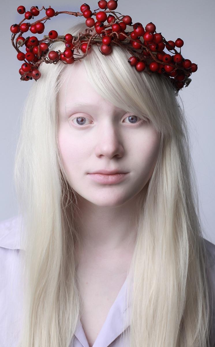 галлюциногенных продуктов альбиносы люди красивые фото живут